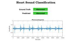 Klassifizierung von Herztönen und Code Generierung für ein Embedded Device mit MATLAB
